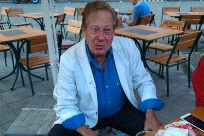 Ученика Фрэнка Синатры избили в Одессе