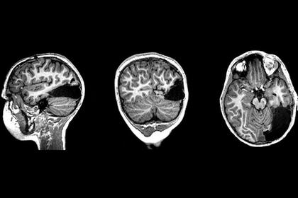Семилетний мальчик лишился части мозга и выжил