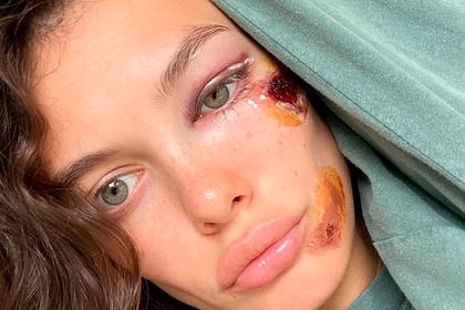 Участница «Холостяка» попала в ДТП на Бали и разбила лицо