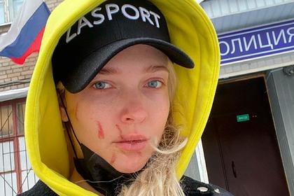 Российская актриса обвинила девушку солиста группы HammAli & Navai в избиении