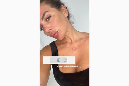 Бывшая солистка «ВИА Гры» показала изменившееся после болезни лицо